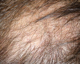 Hair Removal Grafting Transplantation