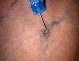 Sclerotherapy view with Syris v-series