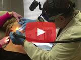 v900L-laser-skin-procedure